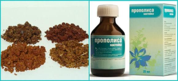 Лечение гайморита настойкой прополиса