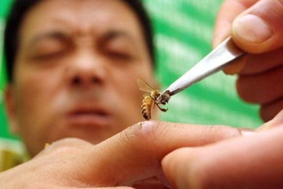 пчелиная терапия