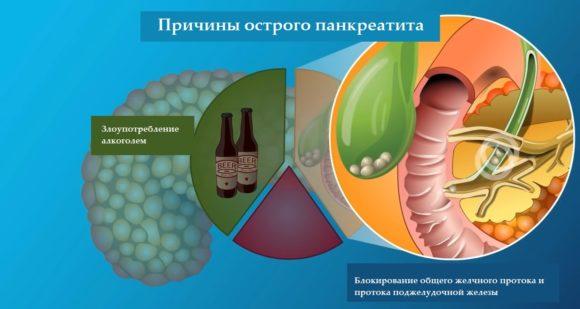 причини острого панкреатита